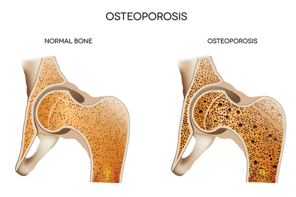 Know more about what causes osteoporosis | Get advice on how to treat osteoporosis