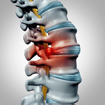 What is the best solution for herniated discs? How do you know if you should see your pain doctor? We review treatment options for you and elaborate on what type of specialist to seek out if your symptoms warrant medical attention.