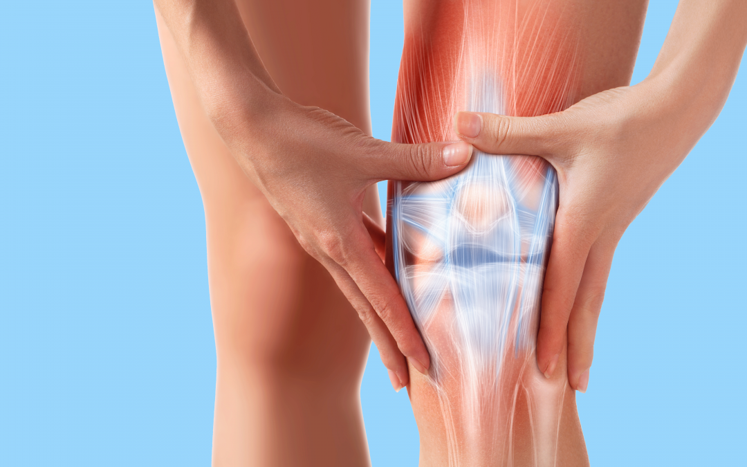 What is Patellar Syndrome?