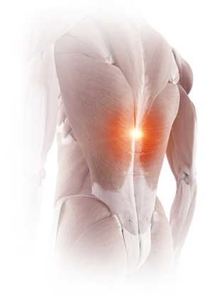 What is Lumbar RFA – Pain Treatment Specialists
