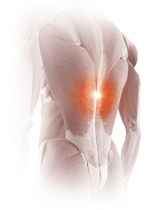 back pain treated with RFA